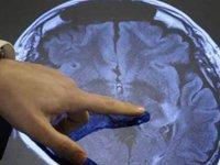 Прием аспирина раз в месяц на четверть снижает онкологические риски. 282429.jpeg