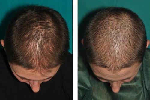 Лучшее средство для сухих волос отзывы
